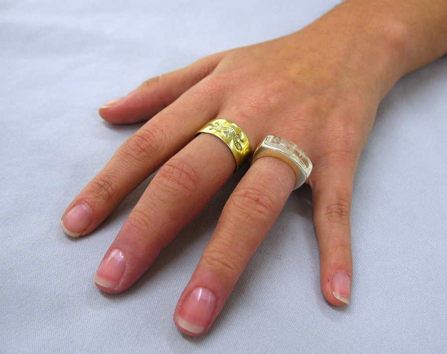 artrose vingers